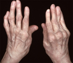 Arthritis-in-hands-3