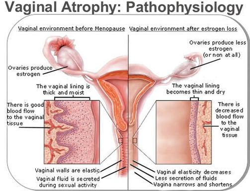 Apologise, but, dry vagina in menopause agree, the