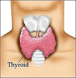 hypothyroid1