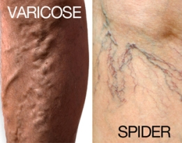 Varicose-and-spider-veins