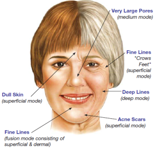 face-map-aging